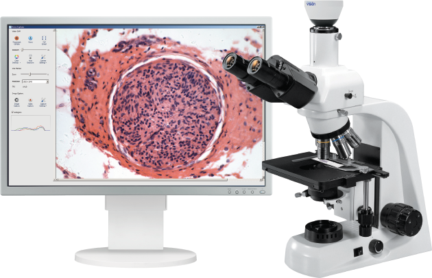 Vision Capture Digital System for Working with Microscopy Samples