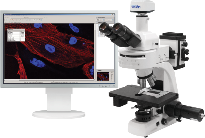 Vision Epi Automatic Digital Analysis System for Fluorescence Microscopy