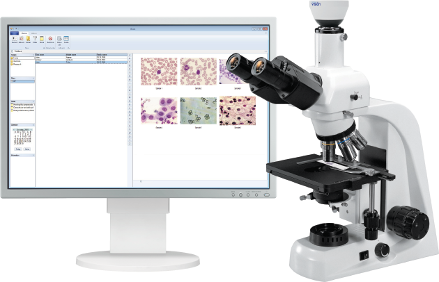 Vision Report Digital System for Microscopy Analysis and Report Generation