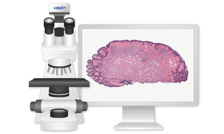 Vision Slide® Basic Convert your microscope into a digital scanner