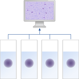 Screening of a thick blood smear for malaria diagnostics