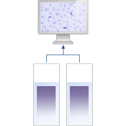 Scanning of a thin blood smear for malaria diagnostics
