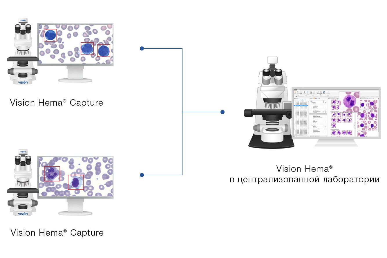 Vision Hema Capture — сбор клеток крови на местах, анализ в централизованной лаборатории